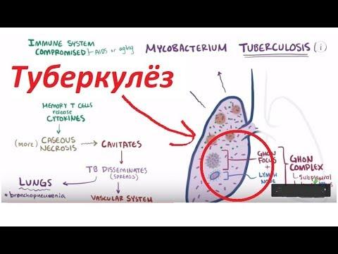 Туберкулез - причины, симптомы, диагностика и лечение (рус)