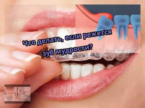 Когда болит зуб мудрости когда режется зуб мудрости