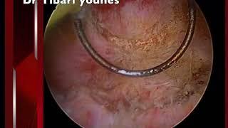 resection de vessie by dr tibari