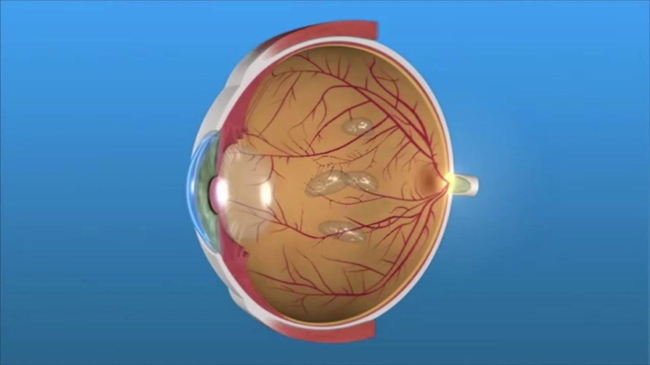 Flotadores o Miodesopsias en los ojos.