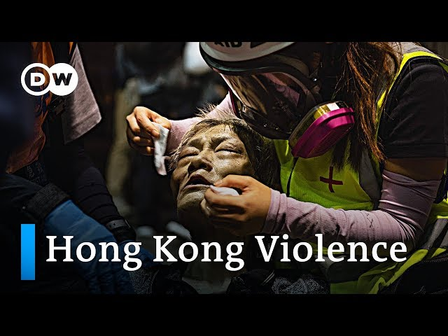 Protester shot, man set on fire in Hong Kong escalating violence | DW News