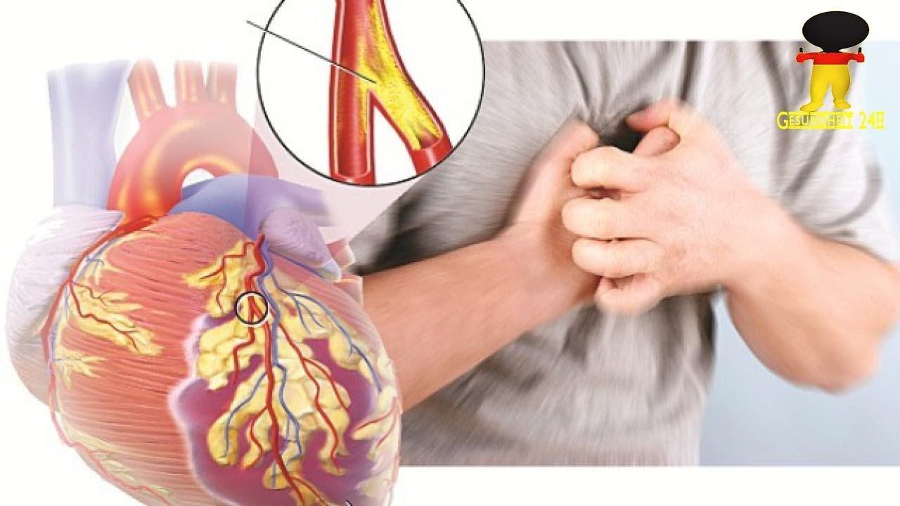 Vorstufe Herzinfarkt