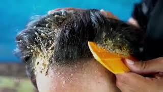Акне выдавливание прыщей чистка кожи чистка лица акне чистка пор чистка волос жировики угри