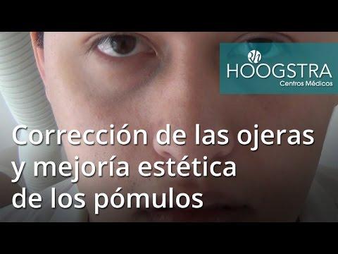 Corrección de las ojeras y mejoría estética de los pómulos (17027)