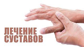 Лечение суставов кистей. Полиартрит, Артроз, артрит