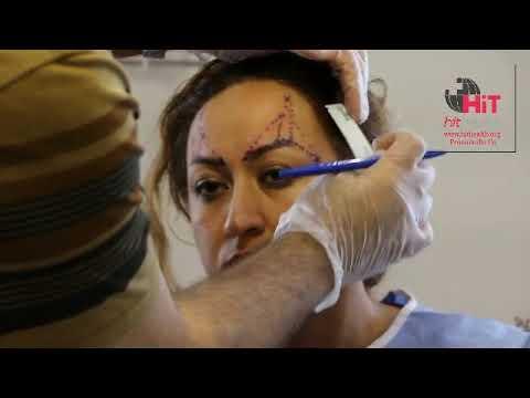 Eyebrow lifting with Double Needle