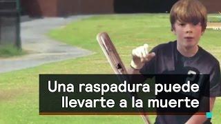 Repeat youtube video Una raspadura puede llevar a la muerte por septicemia - Al Aire con Paola