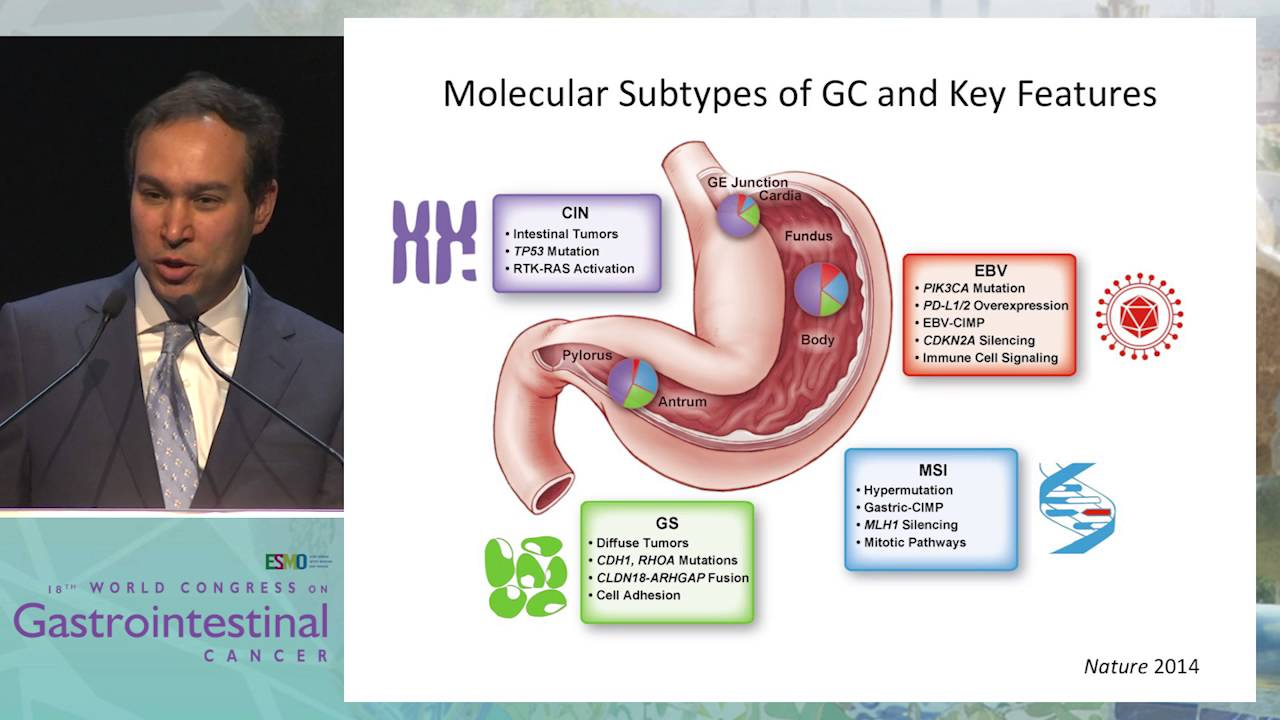 Hpv cancer usmle, Hpv cancer usmle, Gastric Cancer hpv papiloma virus uman