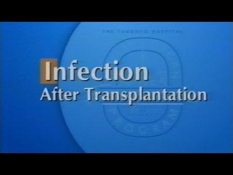 Infection After Transplantation