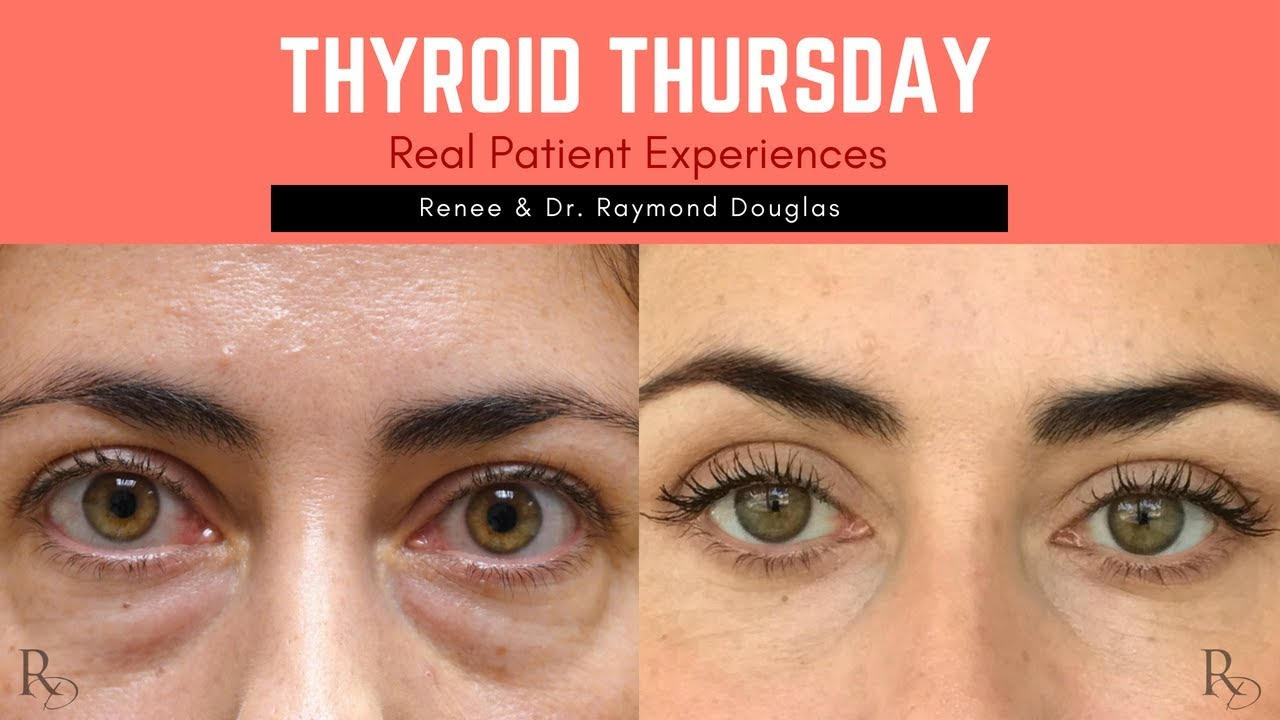 Renee S Thyroid Eye Disease Journey Dr Raymond Douglas Youtube