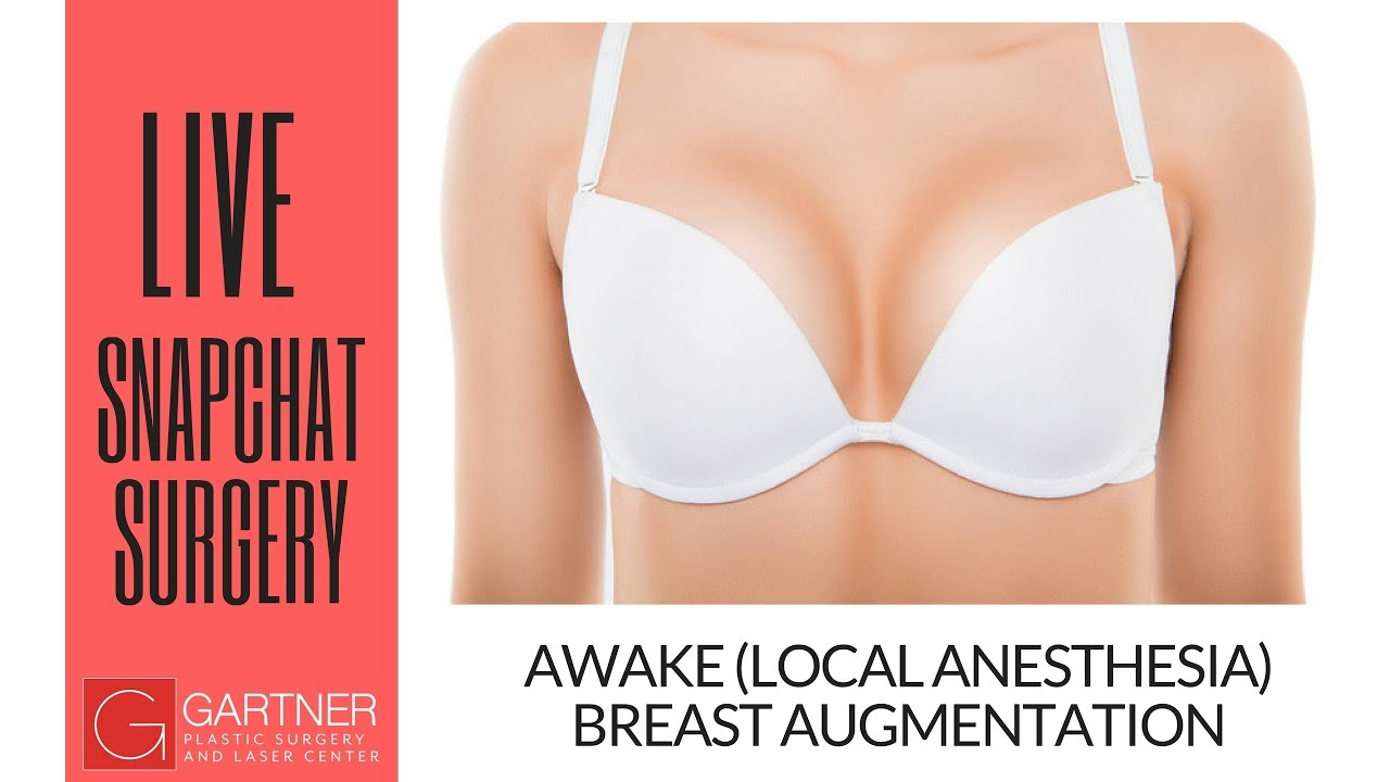 Local plastic surgeons breast implants
