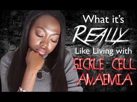 Sickle Cell Anaemia: My Story! | Duchess of Fashion