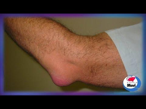 Remedios caseros para la bursitis