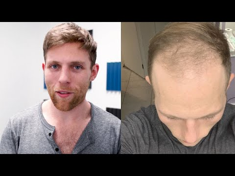 hair-system-review!-amazing-before-&-after-w/-photo-and-videos!