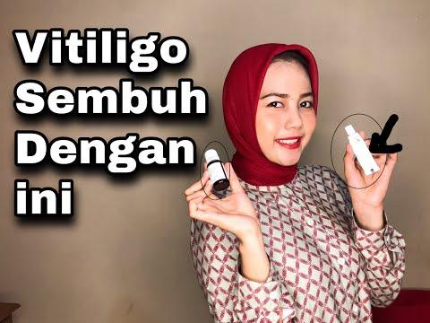 cara-menyebuhkan-vitiligo-dengan-cepat