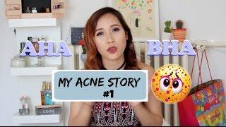 Video [ My Acne Story #1] Review sản phẩm AHA và BHA của Paula's Choice ♡Truc's hobbies♡ download MP3, 3GP, MP4, WEBM, AVI, FLV Juli 2018