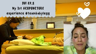 IVF 8: My first ACUPUNCTURE experience