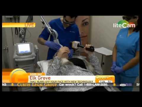 Laser Skin Resurfacing in Sacramento- (916) 502-8325