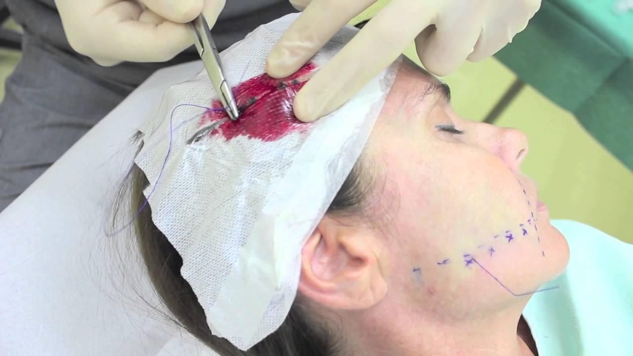 Lifting non chirurgico del volto mediante fili di trazione ...