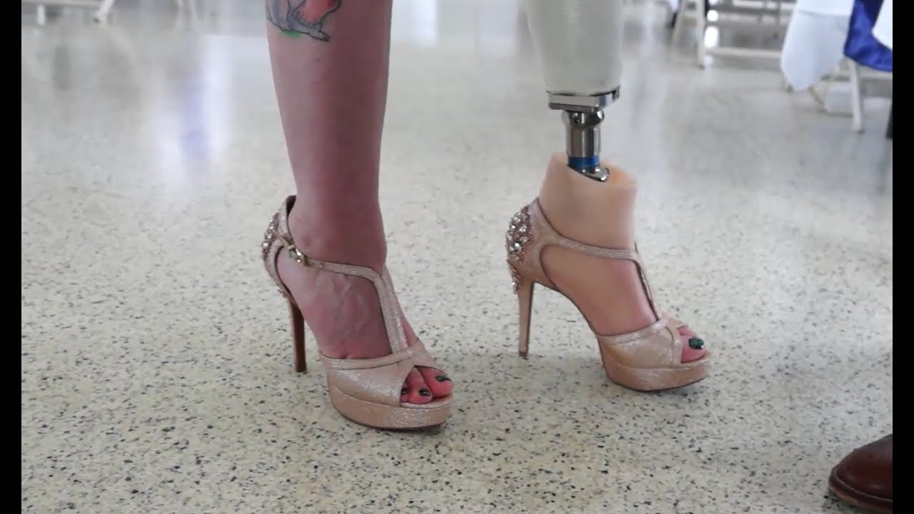 amputeeot yes you can wear 4 heels with a prosthetic leg