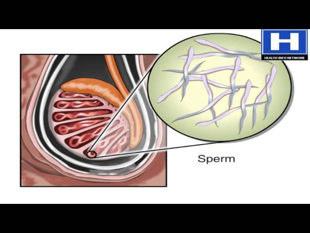 Absolutely useless. which sperm travels faster speaking