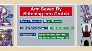 Repeat youtube video Arm Saved by Stitching Into Crotch   Part 1 - Bizarre ER