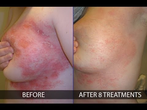 How to treat psoriasis effectively - By Franziska Ringpfeil, Board Certified Dermatologist