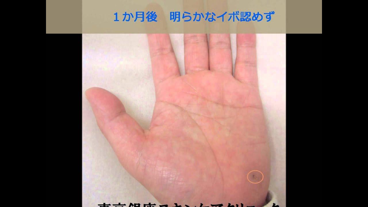 治療 液体 経過 イボ 窒素