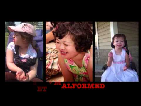 Rare Genetic Disorder: Emanuel Syndrome