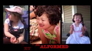 Rare Genetic Disorder: Emanuel Syndrome