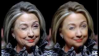 Hillary Clinton Live Face Lift Operating Room Video #1 of 2