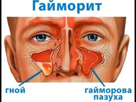Болят пазухи носа после промывания носа