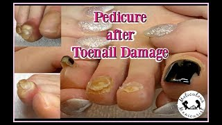 👣 Pedicure on Runner's Damaged Toenails 👣👍