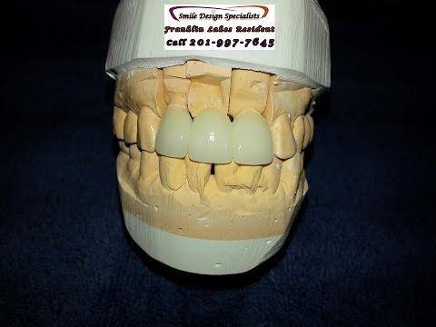 When are porcelain crowns needed-Franklin Lakes nj-call 201-991-1228 Smile Design Specialist
