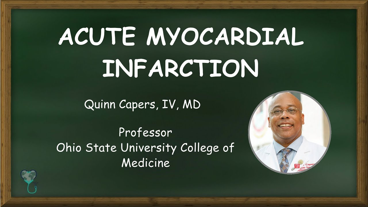 Acute Myocardial Infarction - Vascular Biology and Treatment