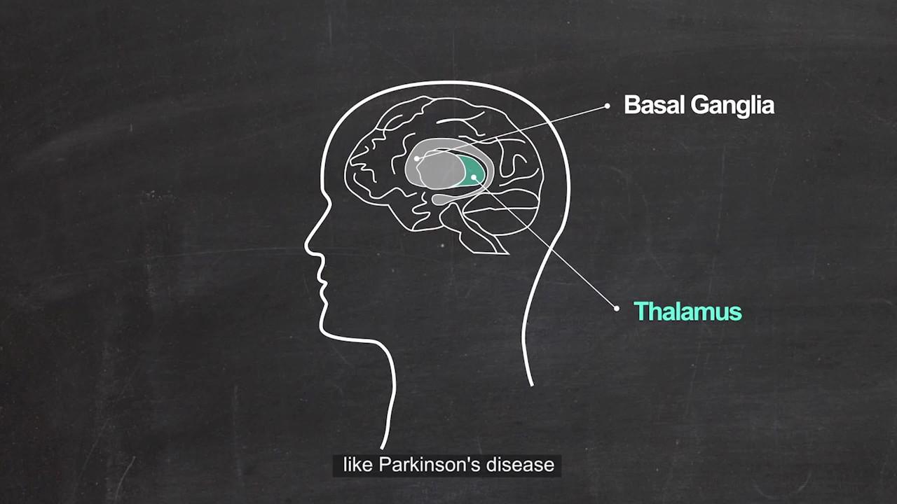 Thalamic Mechanism Of Parkinson Disease Youtube