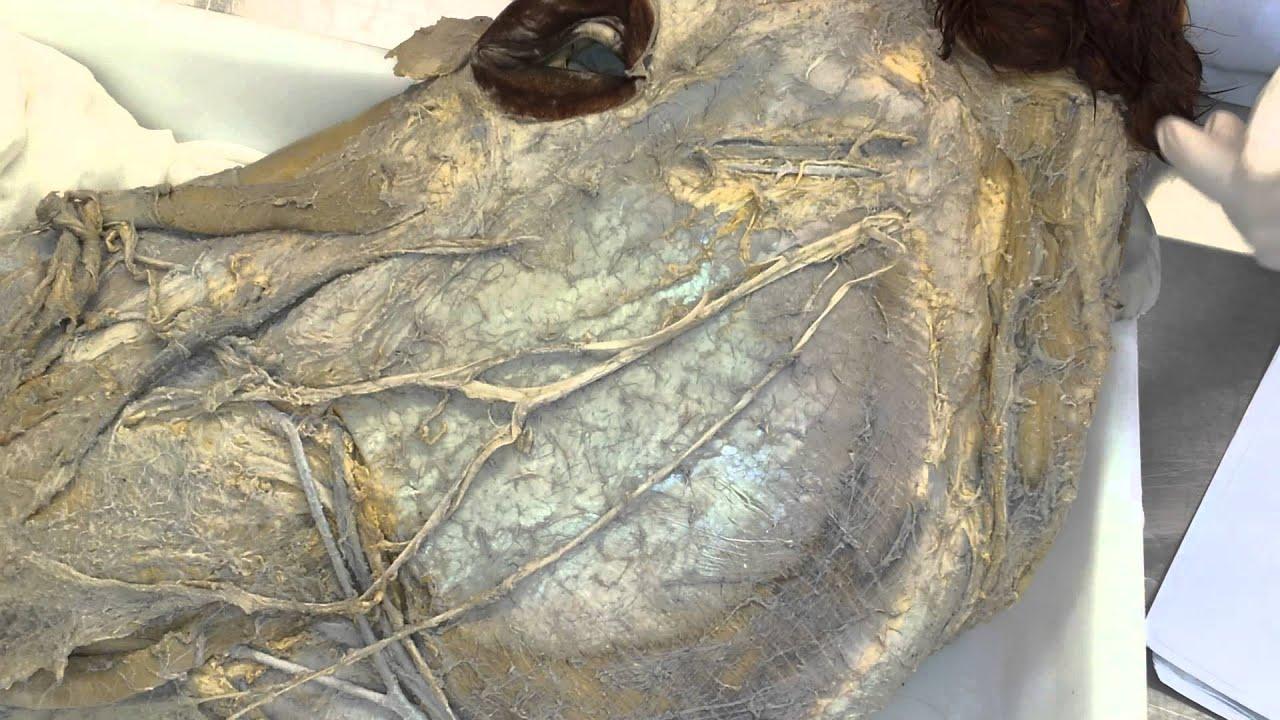 Disección de la región facial en el caballo. Anatomía veterinaria ...