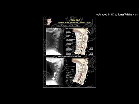 traumatic-cervical-fractures-in-patients-with-ankylosing-spondylitis
