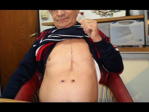 mensaje-de-fumador-con-4-bypass-de-arterias-coronarias