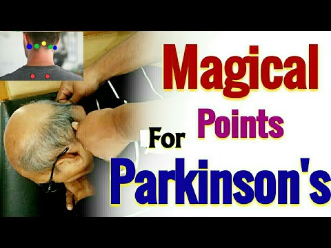 Acupressure Points For PARKINSON'S Disease / Acupressure For Parkinson's Patients / Magical Points