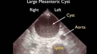 Aorta Ultrasound - Aneurysms - SonoSite, Inc.