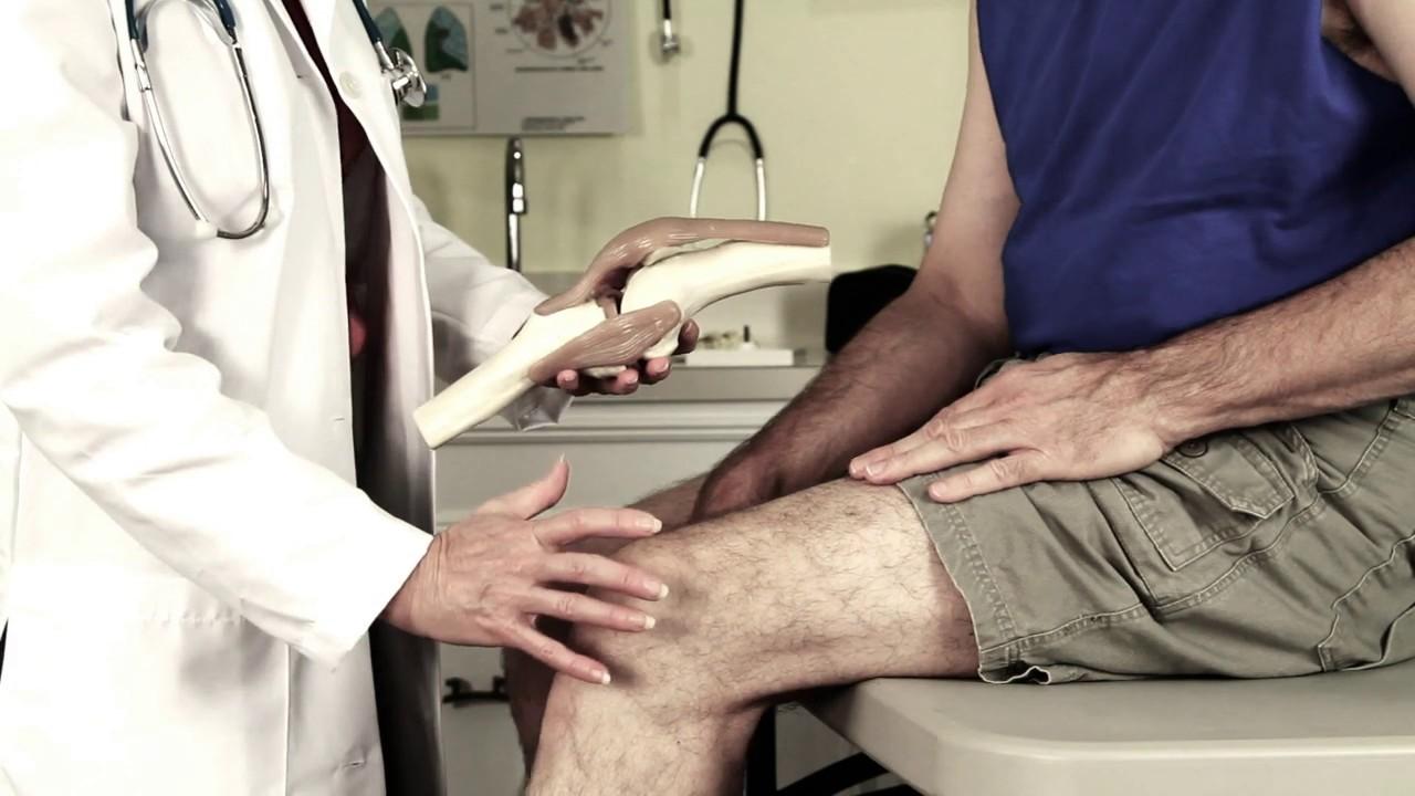 Wie lange ist ein Knie nach OP geschwollen? - YouTube