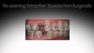 Reversing Previous Orthodontic Treatment