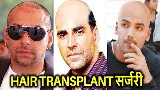 ये बॉलीवुड सुपरस्टार हो चुके है गंजे , लगाते है नकली बाल | Hair Transplant Surgery