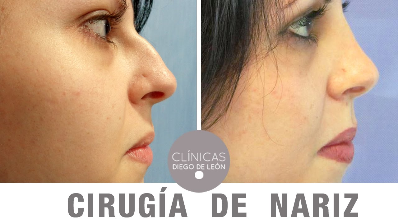 Fotos del antes y despues de una cirugia de nariz