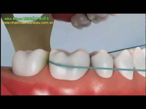Làm sạch răng miệng