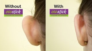 New  Otostick Cosmetic Ear Correctors | An instant Solution for prominent ears