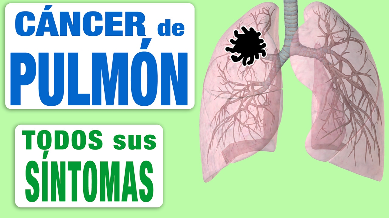 cancer de pulmon sintomas dolor de espalda