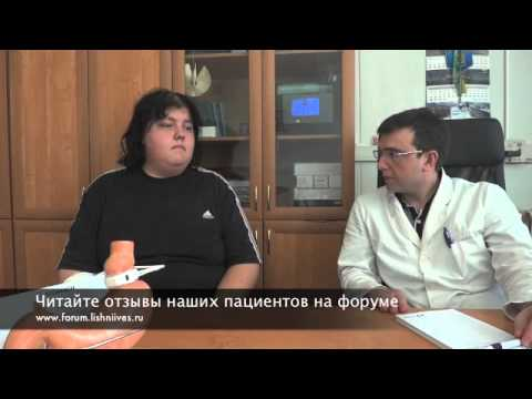 Продольная резекция желудка, ПРЖ, СЛИВ: темпы похудения