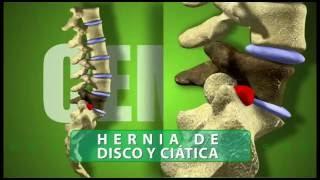 HERNIA DE DISCO CURACION SIN CIRUGIA